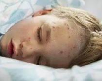 出水痘有什么症状 水痘皮疹分布特点是什么样的