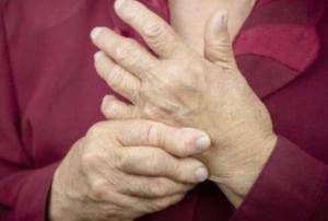 风湿病性贫血是什么原因引起的 风湿病性贫血的症状有哪些