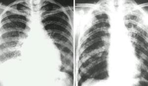 肺结核是怎样引起的 肺结核的症状有什么