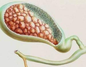 胆结石息肉是怎么回事 胆结石摘除有后遗症吗