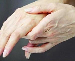 臀上皮神经炎能自愈吗 末梢神经炎多久能好