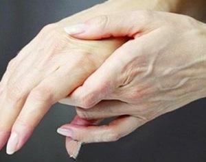 末梢神经炎能自愈吗 过敏性神经炎怎么治疗