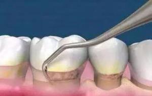 牙周炎的治疗方法有哪些 牙周炎的饮食调理