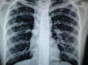 肺结核的原因 肺结核的症状有哪些