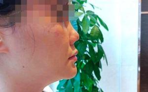 女子花3万元整形感染后变朝天鼻 向医院索赔