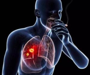 流产可增加乳腺癌风险吗 防乳腺癌多吃芒果有效吗