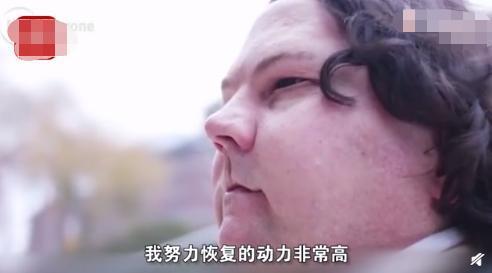 """医学昌明!全球首例""""换脸""""手术成功"""