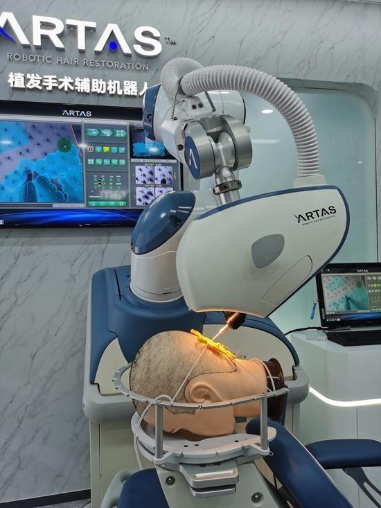 ARTAS植发机器人再度亮相进博会,植发行业迎来智能科技新时代