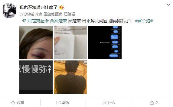 自称遭屈楚萧家暴的女网友承认说谎:照片都是假的