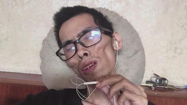 抗癌小伙阿健去世:曾被质疑炒作 最后画面瘦到皮包骨